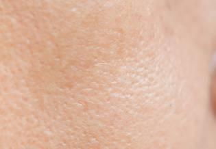 Larocheposay ArtikkelSide Akne Alt om akne og fet hud
