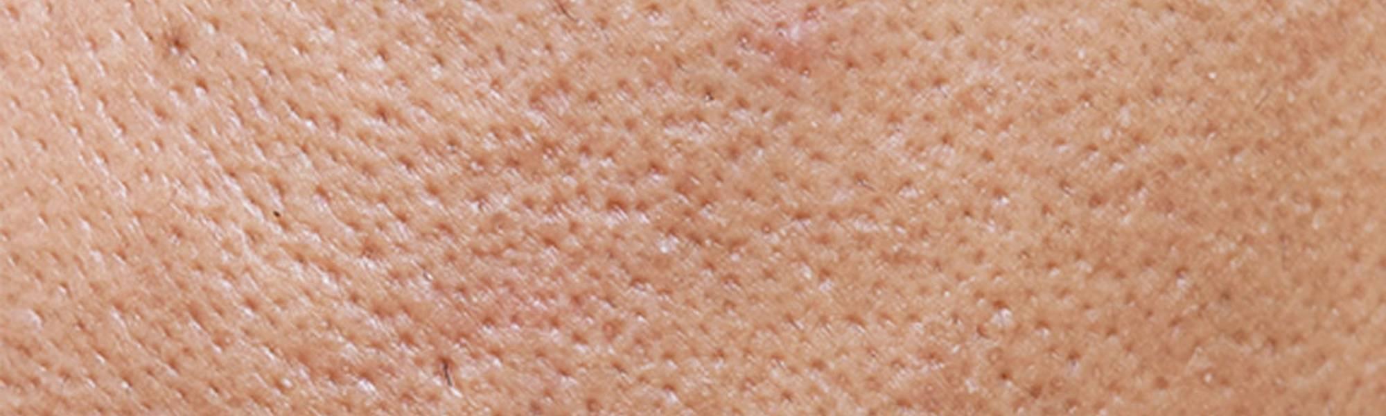Larocheposay ArtikkelSide Akne Hvordan bli kvitt hudormer