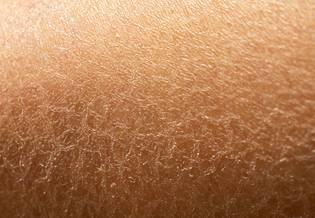 Larocheposay ArtikkelSide Sensitiv Dehydrert hud